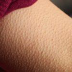 علت مور مور شدن دست نشانه چیست؟ + درمان آن