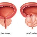علائم بیماری پروستات و عوامل مستعد کننده آن