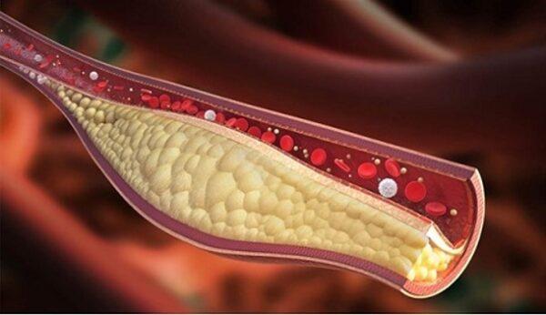 نقش چربی خون در بدن + علائم افزایش چربی خون