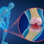 برای پیشگیری از پوکی استخوان مصرف این سه ماده موثر