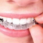 با ارتودونسی مخفی برای دندان های نامنظم آشنا شوید