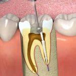 عصب کشی دندان چه جوریه !؟/ چه زمانی لازم هست انجام دهیم