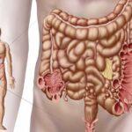 دیورتیکولیت چه بیماری است؟
