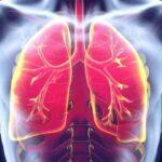با بیماری ذات الریه و علائم آن آشنا شوید / افراد سیگاری بیشتر مراقب باشند
