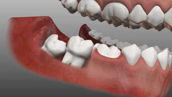 شکل دندان عقل