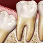 شکل دندان عقل و این که آیا کشیدن دندان عقل ضرورت دارد؟
