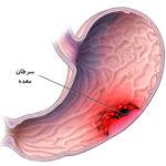 علائم و نشانه های سرطان معده را بخوانید و سرطان معده از چه زمانی آغاز میگردد؟