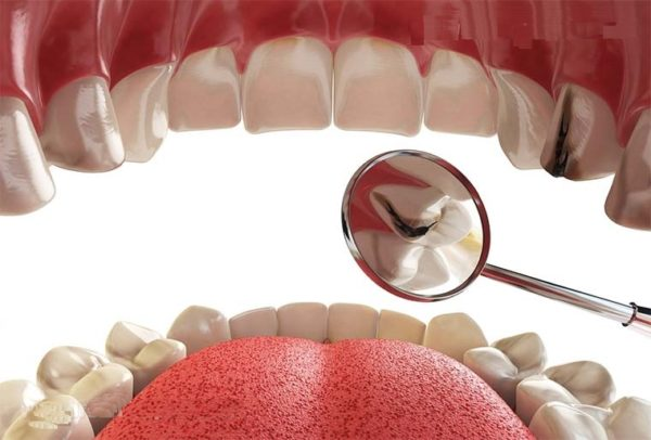 بهترین راه جلوگیری پوسیدگی دندان