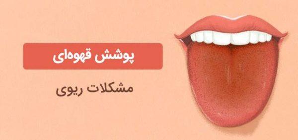 تغییر رنگ زبان