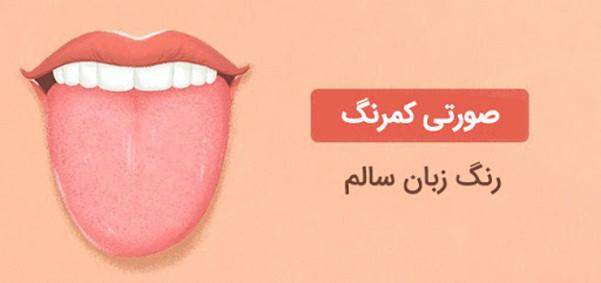 تغییر رنگ زبان اخطاری است برای اعلام بیماری
