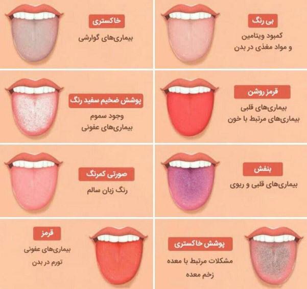 تغییر رنگ زبان نشانه چه بیماری است