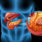لوزالمعده بیمار شده چه علائمی را در بدن ایجاد میکند؟