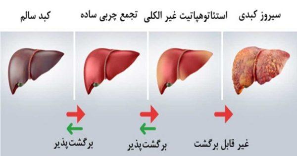 کبد آسیب دیده در اوایل بیماری چه علائمی دارد؟
