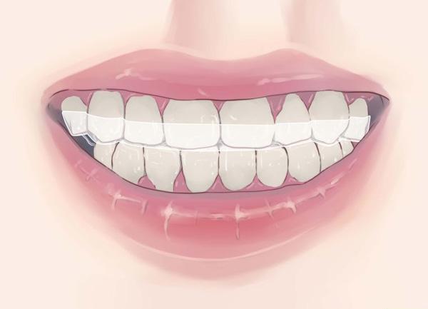 دندان قروچه یا ساییدن چه دلایلی دارد؟ مراقب مفصلها باشید