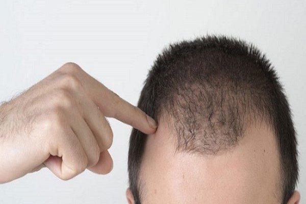علت ریزش مو و کچلی