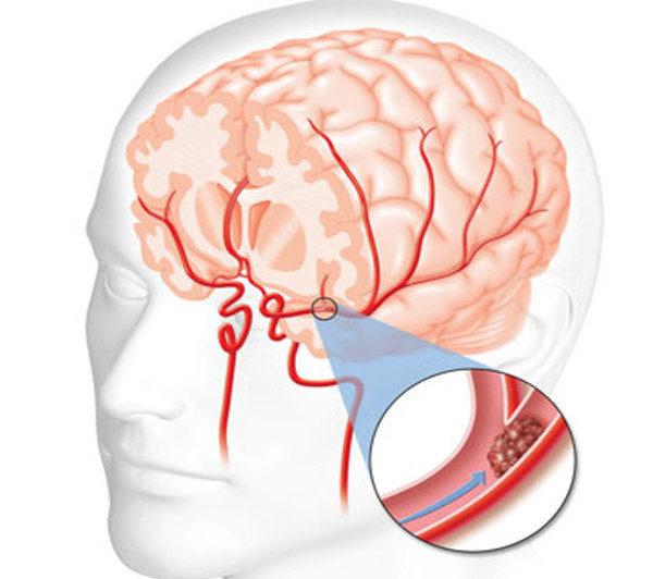 سکته های مغزی چه علتی دارند؟ آیا ضربه به سر باعث سکته مغزی میشود؟