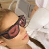 لیزر موهای زائد خطرناک است؟ / چه نکاتی بعد از لیزر باید رعایت شود؟