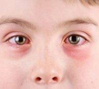 قرمز شدن چشم چه دلایلی دارد و چگونه میتوان آن را درمان کرد؟