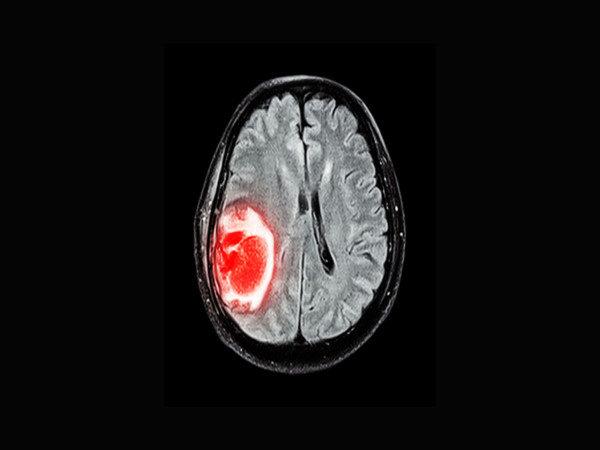 تومور مغزی چه نشانه هایی دارد؟ / سردردهای گاه و بیگاه را جدی بگیرید
