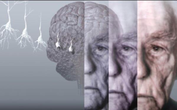 چه کسانی آلزایمر می گیرند