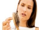 چرا موهایمان را از دست میدهیم؟