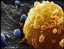 پیشگیری از سرطان از چه راههایی ممکن است؟