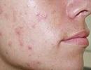 رژیم غذایی استاندارد برای درمان جوشهای صورت