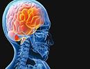 سکته های مغزی چه علتی دارند؟/آیا ضربه به سر باعث سکته مغزی میشود؟