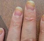 ده راه درمان عفونت قارچی ناخن
