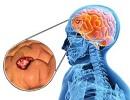 علائم تومور مغزی را می دانید!
