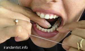 روش استفاده از نخ دندان(با تصاویر)