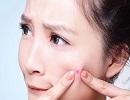 اثرات استرس و نگرانی بر پوستتان را میدانید ؟!