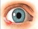 علت بروز گل مژه در چشم چیست