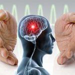 سکته مغزی و نحوه جلوگیری از آن