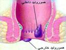 بواسیر چیست؟ / بهترین راه درمان بواسیر یا هموروئید