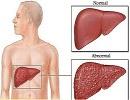 راههای تشخیص کبد چرب ، چه عواملی سبب ابتلاء به کبد چرب میشود