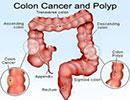 ۵ راه ساده برای پیشگیری از سرطان روده بزرگ