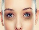 روش درمان سیاهی دور چشم
