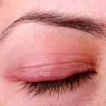 علت بیماری چشم بلغاریت چیست؟