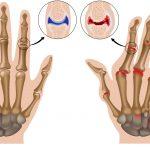 آرتروز از پیشگیری تا درمان | جلوگیری از پیشرفت آرتروز با کمک طب فیزیکی