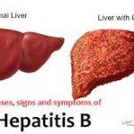 راه های انتقال هپاتیت B شایع ترین نوع هپاتیت و بیماری کبدی چیست ؟