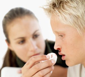 در فصل گرما اگر خون دماغ شدید چه کارهایی باید انجام دهید؟