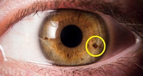 لک های چشم از چه چیزی خبر میدهند؟