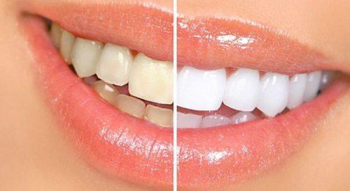 زرد شدن دندان