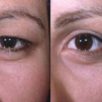 درمان افتادگی پلک و بیان علت آن