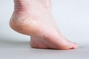آشنایی با مهمترین علل خشکی کف پا
