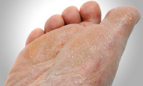 خشکی کف پا