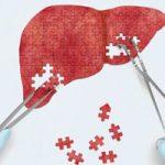 علایم و عوارض بیماری کبد چرب و بهترین روش های درمان بیماری کبد چرب