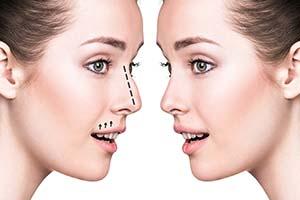 جراحی بینی یا رینو پلاستی چیست و برای چه کسانی مناسب است