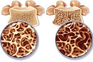 بهترین داروهای طبیعی برای پیشگیری از پوکی استخوان